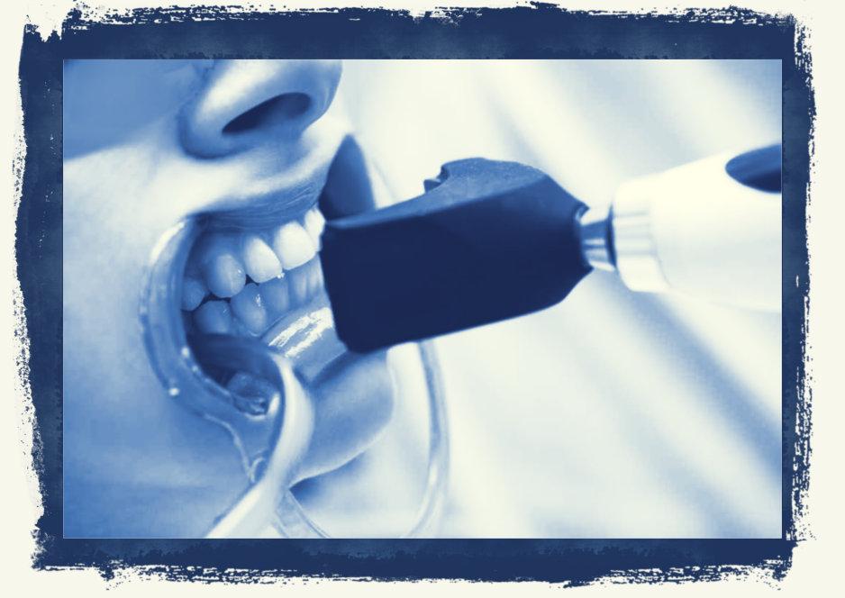 Fogfehérítés esztétikai fogászat